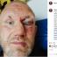 """顔面殴打された元PRIDE戦士ハリトーノフが""""重傷""""写真をインスタ公開、""""戦友""""のミルコ・クロコップも応援"""
